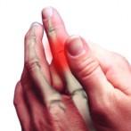 Bol u zglobovima prstiju