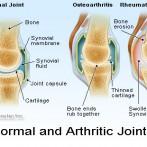 Reumatoidni artritis?