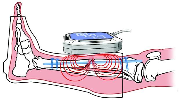 magnetna-terapija-fraktura
