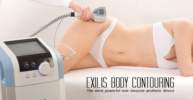 exilis-treatment2