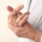 """Bolni i """"škljocavi"""" prsti"""